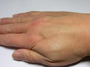 右手(塗布後)