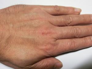 左手(使用前)