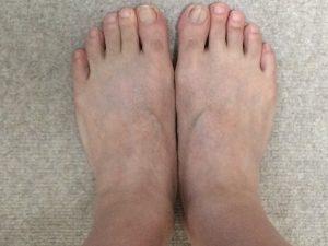 足の指毛・足の甲の毛