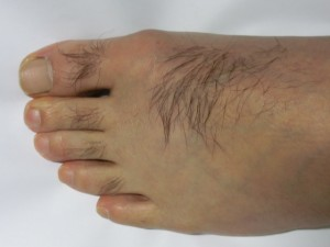 左足(除毛 処理前)
