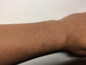 手の指の毛、手の甲の毛、腕の毛