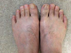 足の指・甲のムダ毛