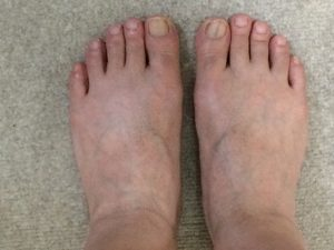 MONOVOヘアリムーバークリームで足の指・甲のムダ毛を除毛