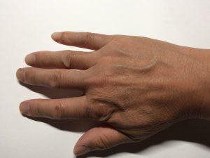 手の指の毛・甲の毛